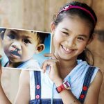operation_smile children kids volunteer