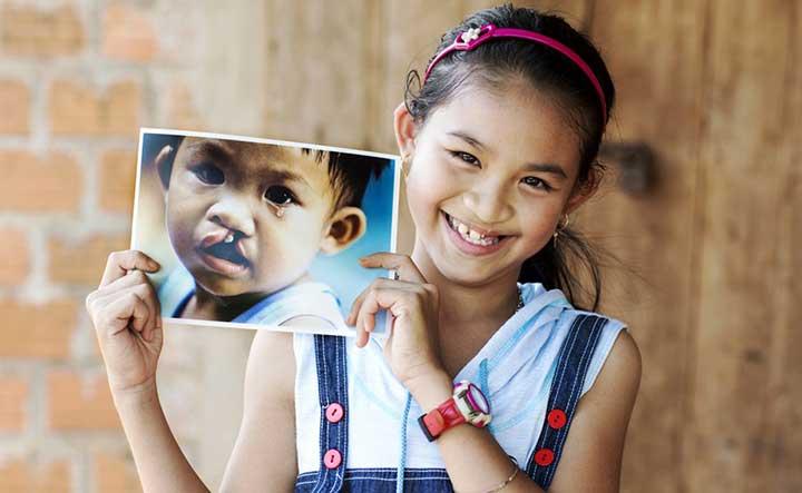 operation_smile children kids volunteer