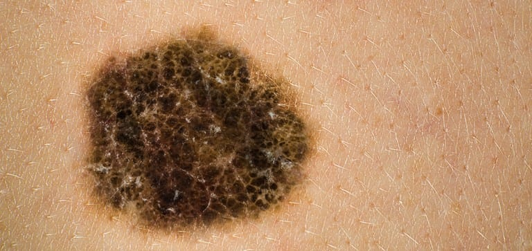 Study: Melanoma increases among middle-aged adults