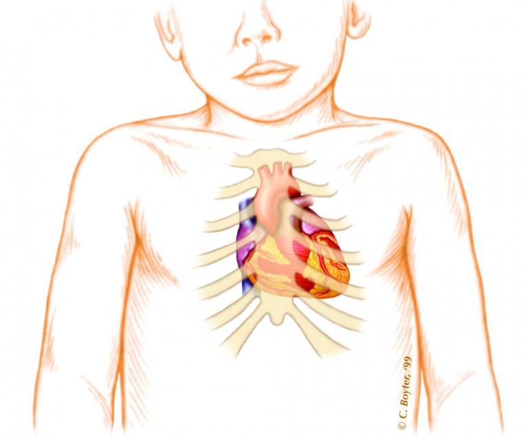 Learning the language of pediatric heart sounds