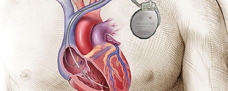 Implantable Cardioverterdefibrillator - procedure ... |Defibrillator Surgery Risks