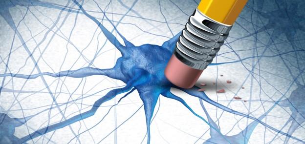dementia erasing neurons