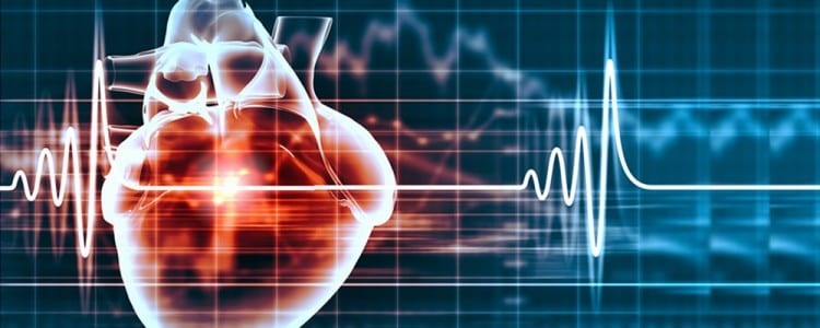Therapeutic hypothermia after cardiac arrest - American