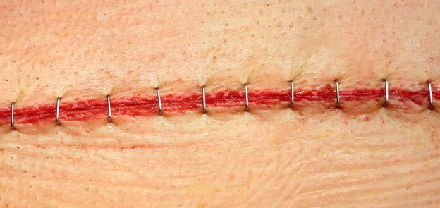 surgicial staples