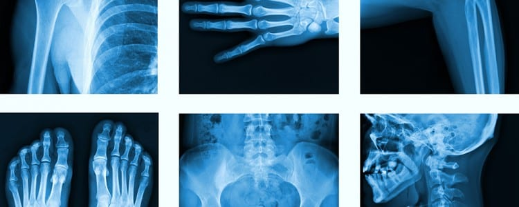 Stopping The Silent Progression Of Osteoporosis American