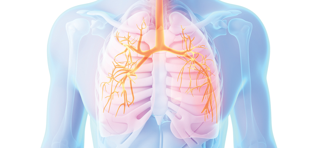 respiratory failure nursing case study Nursing care plan a client with ards  episode of respiratory failure due to ards differ from respira-  case studies, care plan activities.
