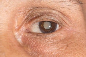 Mature cataract with painless clouding of lens