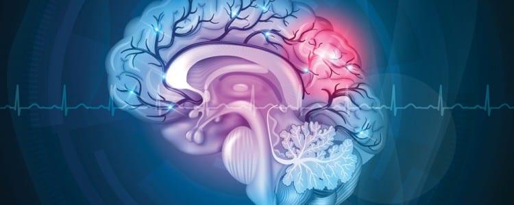 Secondary stroke