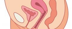 ANT0816_PelvicOrganProlapse