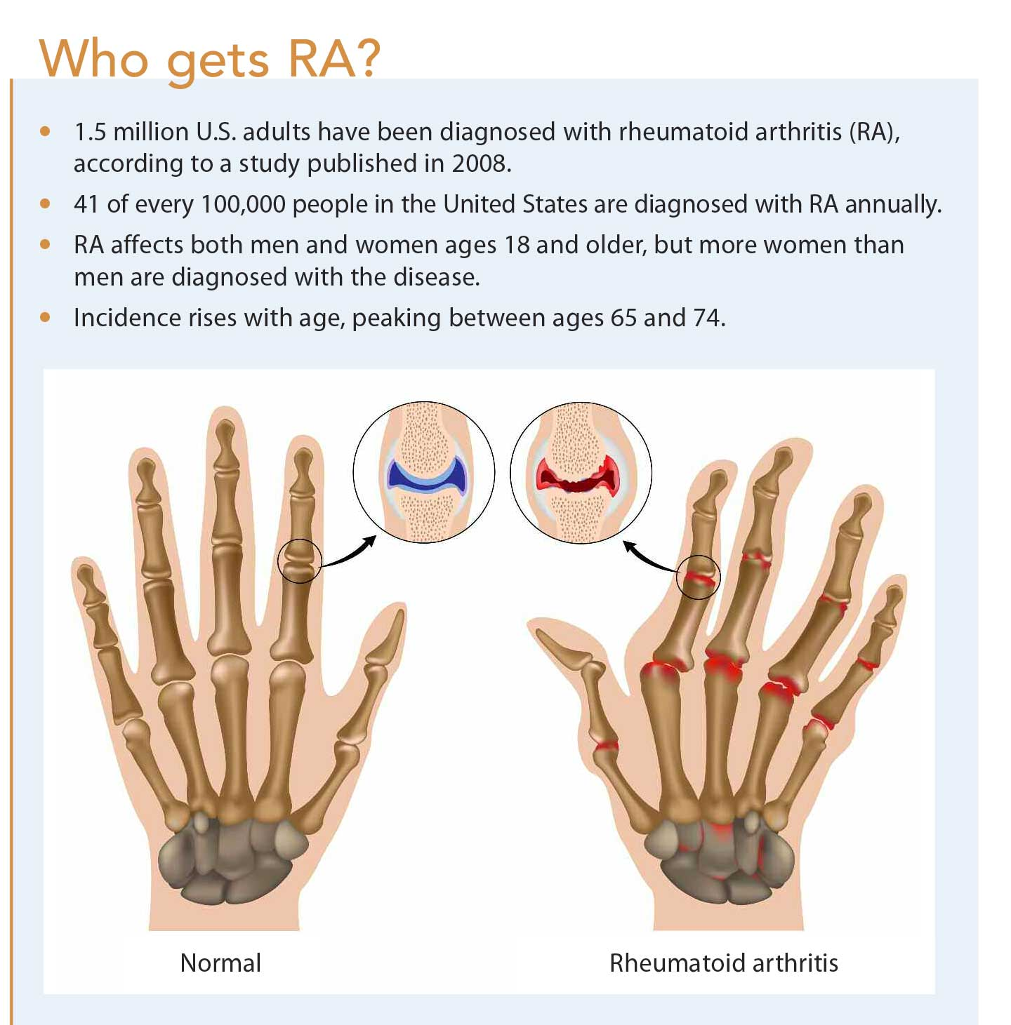 A debilitating disease marked by swelling tenderness and synovial joint destruction rheumatoid arthritis ra can lead to severe functional disability