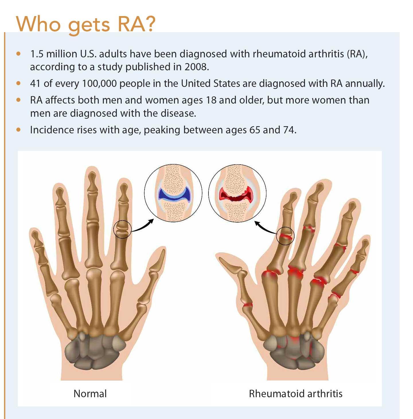 Rheumatoid Arthritis: Can it Damage More Than Joints