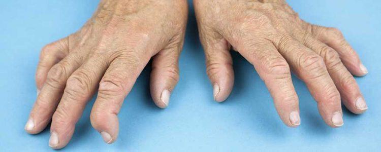 Seropositive And Seronegative Rheumatoid Arthritis What Is It Causes Symptoms Treatment Icd 10 Code