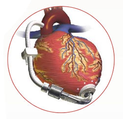 caring for patients with a left ventricular assist device