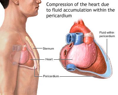 Acute cardiac tamponade
