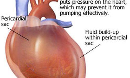 Acute cardiac tamponade - American Nurse Today