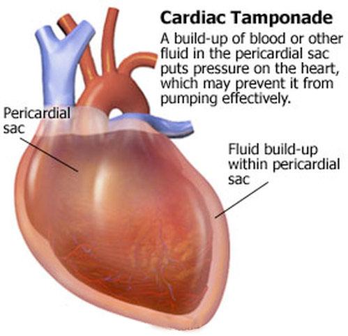 acute cardiac tamponade - american nurse today, Skeleton