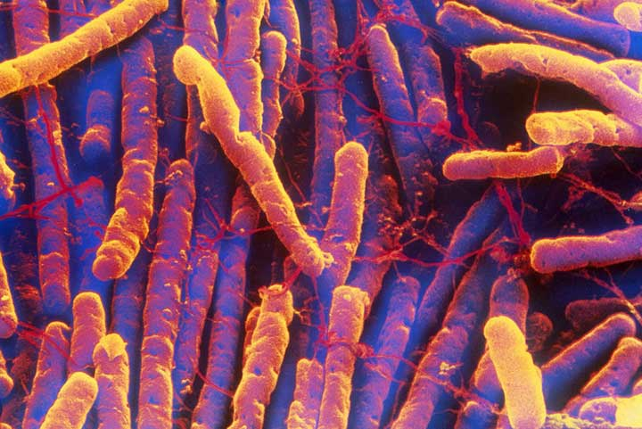 clostridium difficile infection