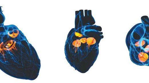 patient care after transcatheter aortic valve replacement