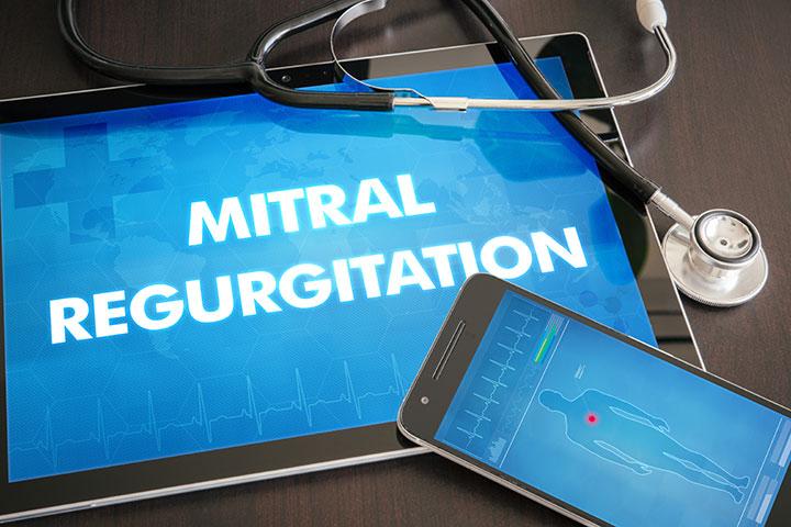 hypertension mitral regurgitation