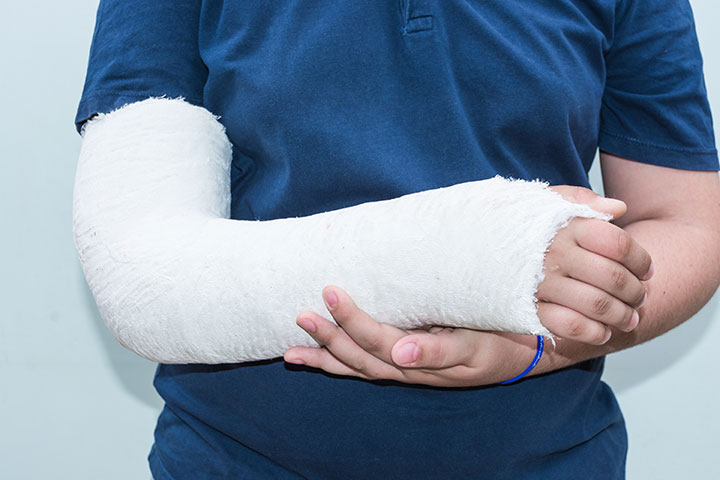 fall history risk bone fracture