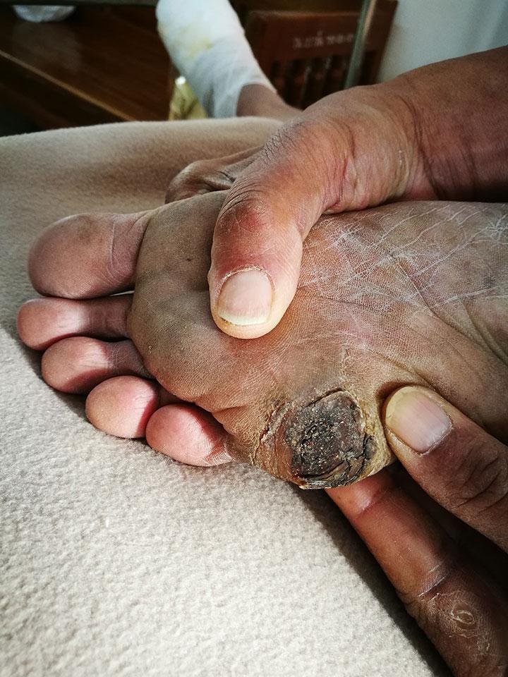 fda foot ulcer device diabetic