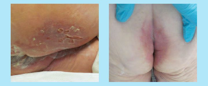 incontinence associated dermatitis management update