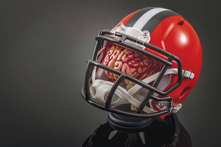 concussions prevention assessment management