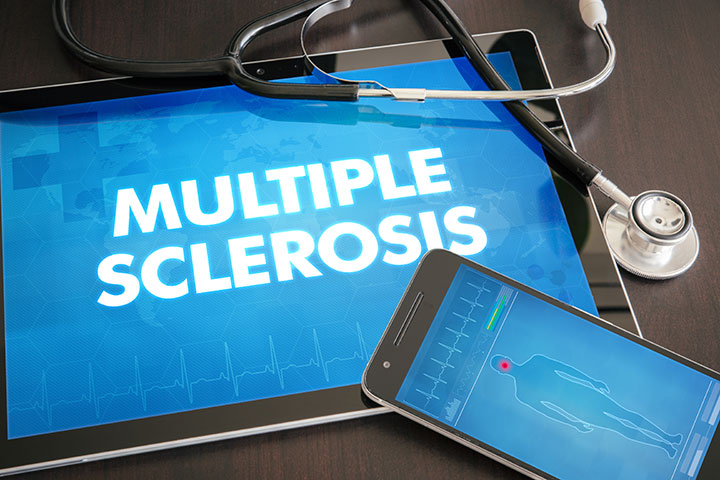 multiple sclerosis fatigue patient