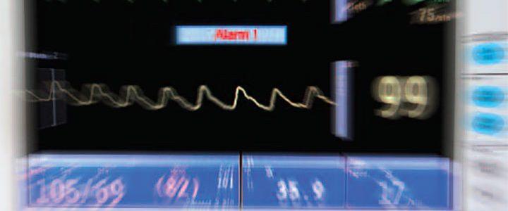 nurse perception alarm fatigue ant