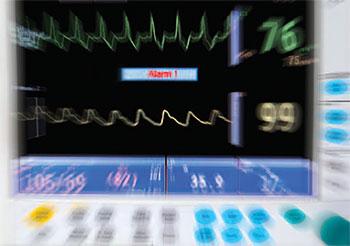 nurse perception alarm fatigue