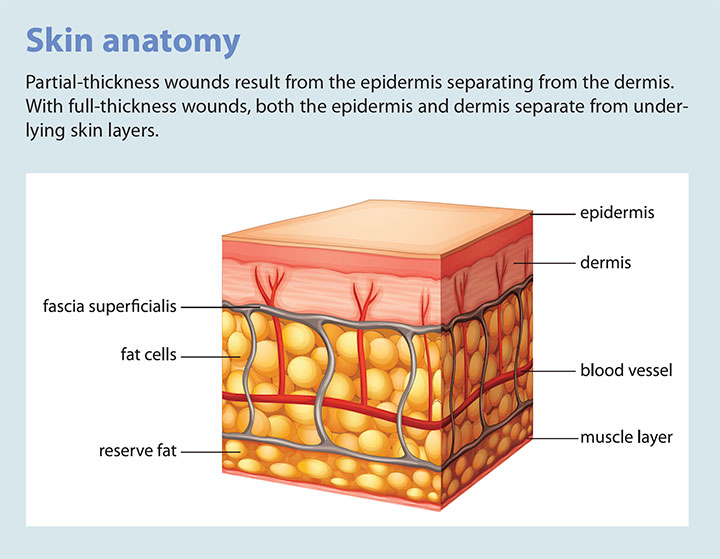 tear assessment management prevention skin anatomy