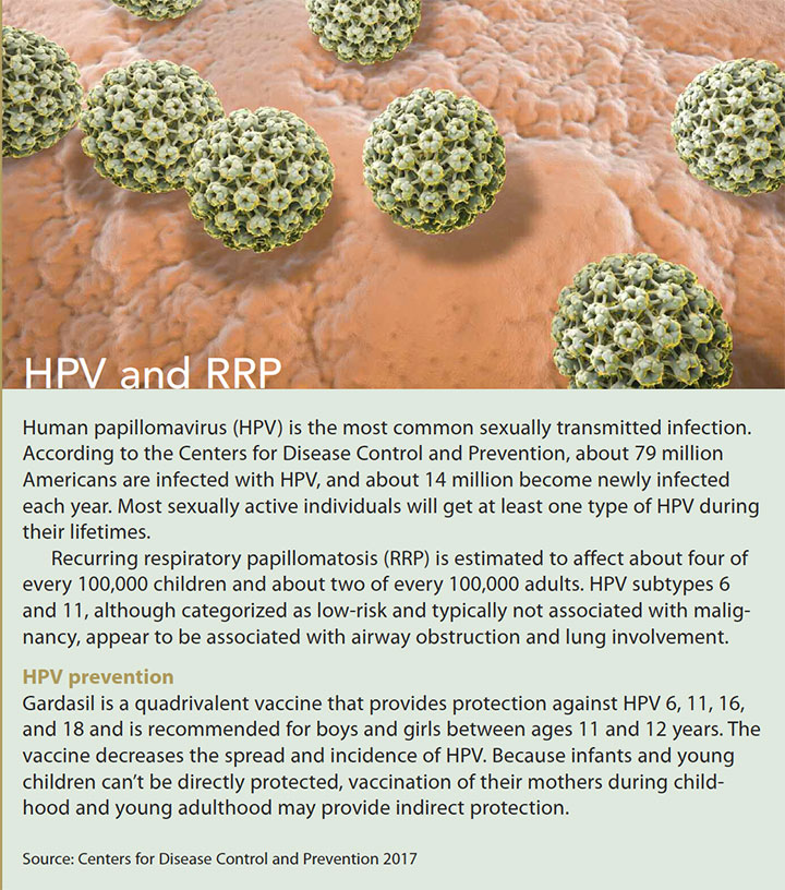 recurrent respiratory papillomatosis hpv rrp