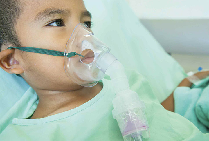 Recurrent respiratory papillomatosis in children