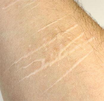 adolescents nonsuicidal self injury post