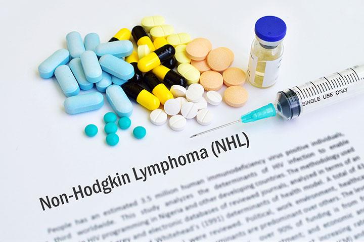 rare types non hodgkin lymphoma
