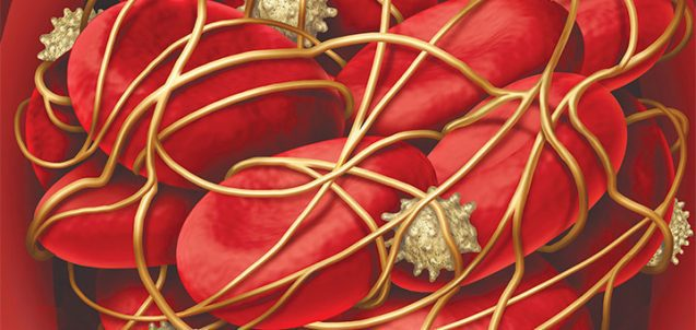 venous thromboembolism troubling events