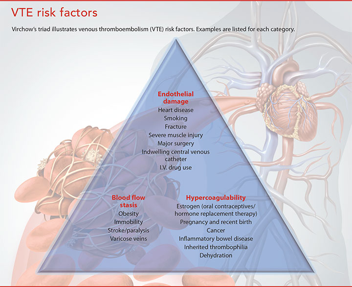 venous thromboembolism troubling events vte risk factor
