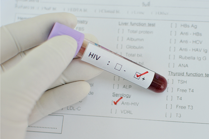 antibody therapy hiv patients