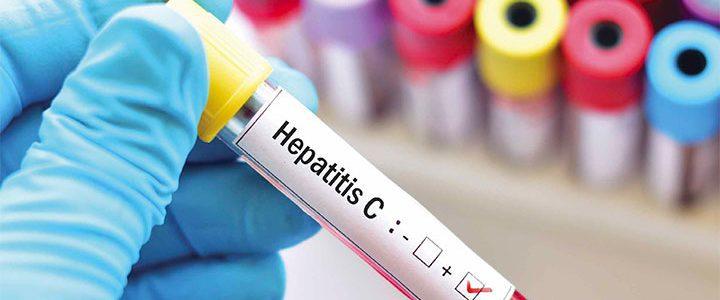 screening management hepatitis-c