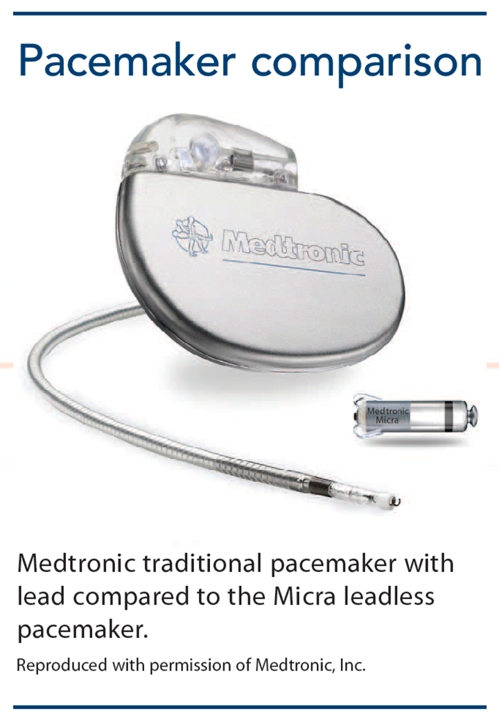 leadless pacemakers cardiac pacing comparison