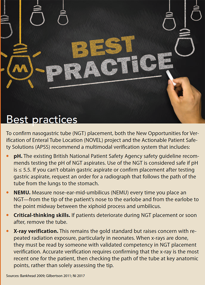 reducing nasogastric tube misplacement best practices