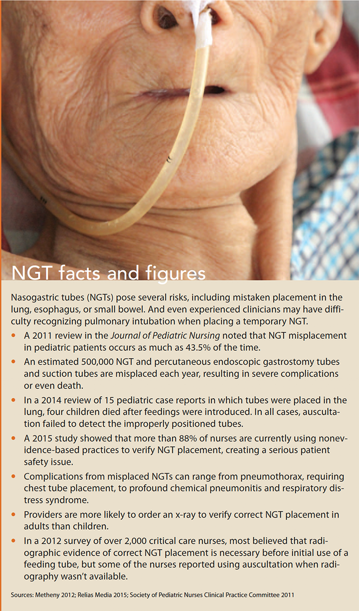 reducing nasogastric tube misplacement facts figures