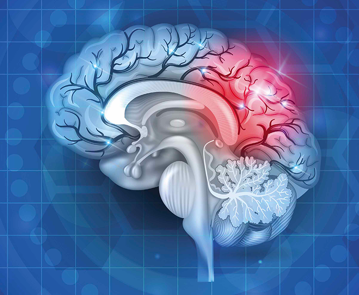 reducing readmissions in stroke patients
