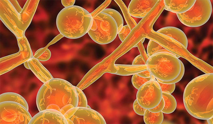 Candida auris: Nurses' response to an emerging threat