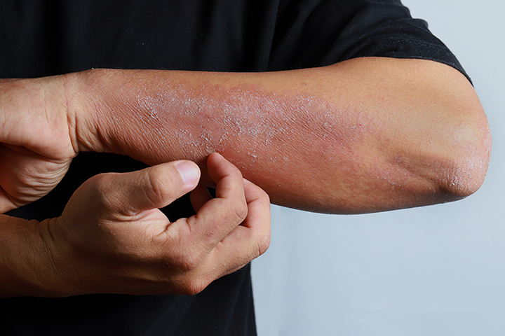 manage severe atopic dermatitis