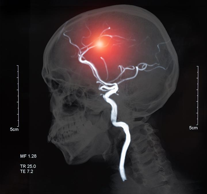 cilostazol aspirin clopidogrel reduces recurrent stroke