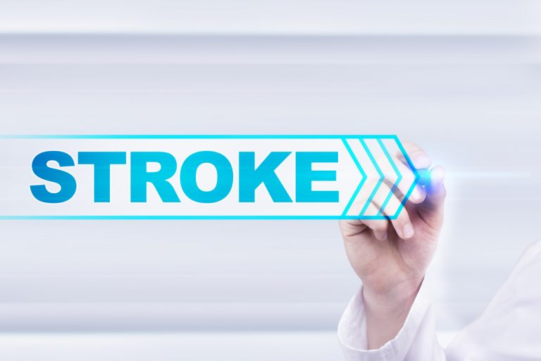 Stroke: Act FAST