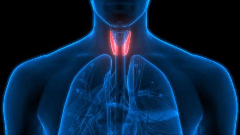 Thyroid storm: A cause for grave concern