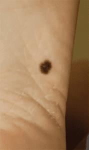 mitigating-melanoma-acral-lentiginous