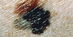 mitigating-melanoma-superficial-spreading-melanoma